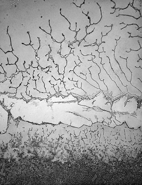 طوبوغرافيا الدموع تحت المجهر